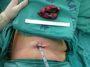Pain will be much less with a single incision VATS surgery (now with chest tube) and specimen removed (photo courtesy of Dr. Chen)