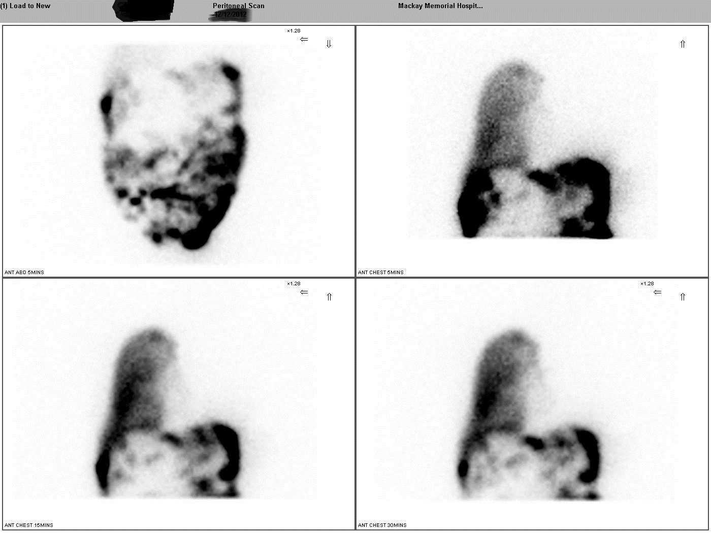 Case Report: Repair of diaphragm defect in Hepatic Hydrothorax