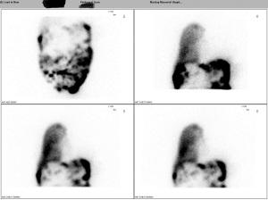 Peritoneal scan