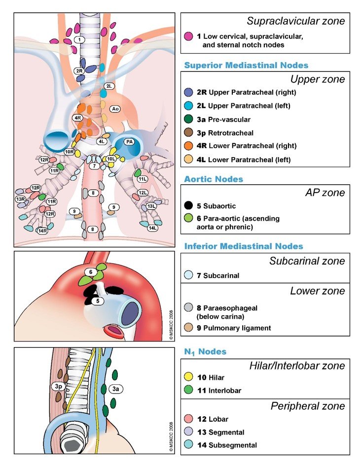 Lymph nodes used for diagnosis and staging.  Copyright Memorial Sloan-Kettering Cancer Center. Used with permission.