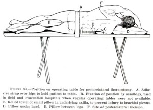 left posterolateral thoracotomy (illustration courtesy of Office of Military History)