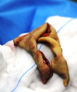 Skin harvested to cover flap site