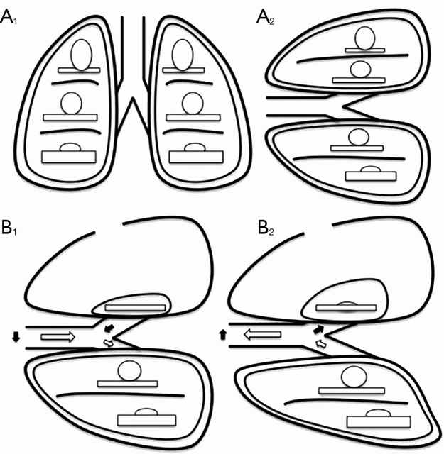 The relationship between ventilation and perfusion. (A) Relationship between ventilation (roundes) and perfusion (rectangles) in different lung zones, in upright (A1) and lateral position (A2); (B) relationship between ventilation (roundes) and perfusion (rectangles) in lateral position with surgical pneumothorax, during spontaneous inspiration (B1) and exhalation phase (B2). Black arrows show paradoxical ventilation and mediastinal shift. (Illustration and caption from David et. al, 2015)